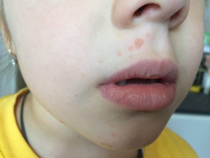Герпес на лице (на носу, на подбородке, на щеке) – как быстро вылечить? таблетки от герпеса последнего поколения, лечение герпеса народными средствами