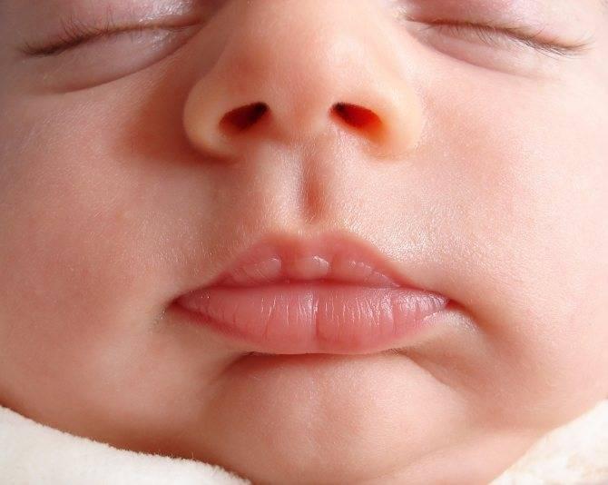 если у ребенка холодный нос на улице