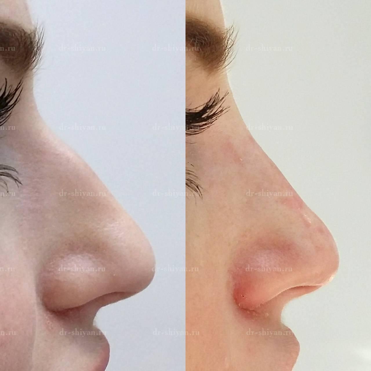 изменить форму носа без операции