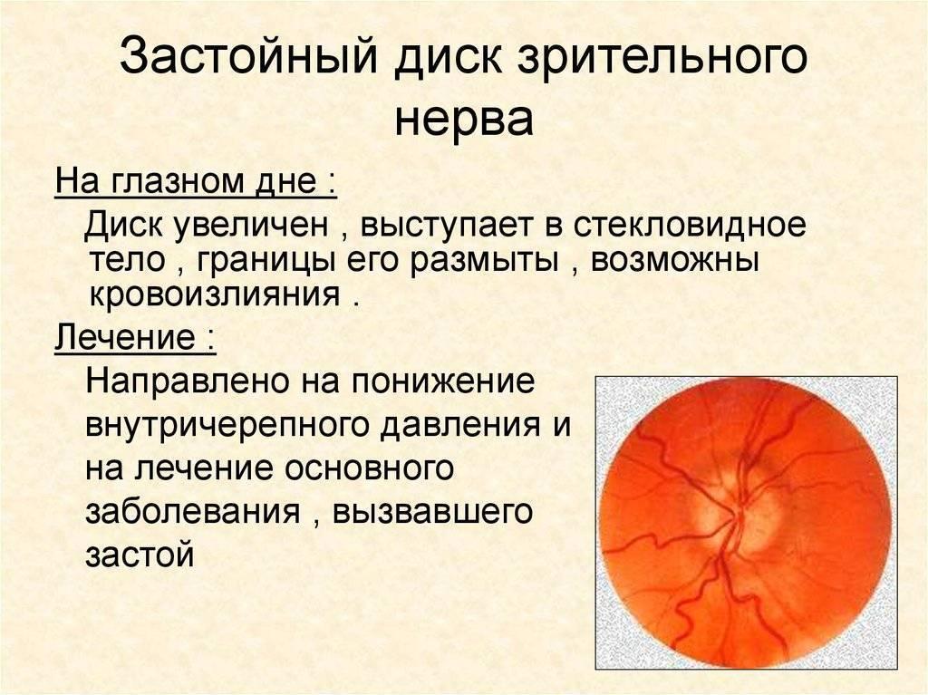 отек зрительного нерва лечение