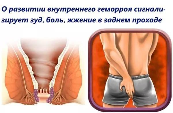 Лечение геморроя у мужчин народными средствами, таблетками, свечами, мазями и показания к удалению