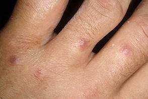 Церкариоз: возбудитель, симптомы и лечение