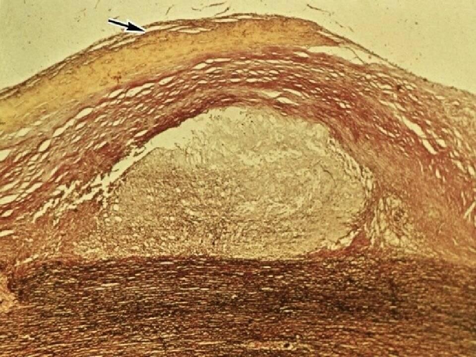 атеросклероз аорты степень