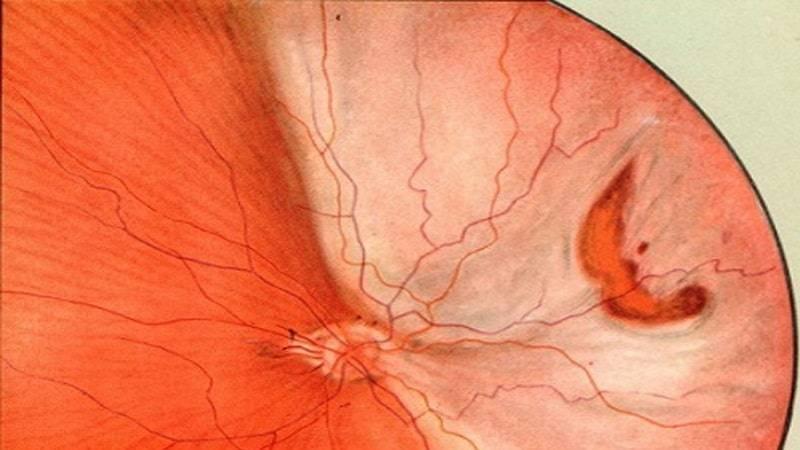 Причины и симптомы макулодистрофии сетчатки глаза