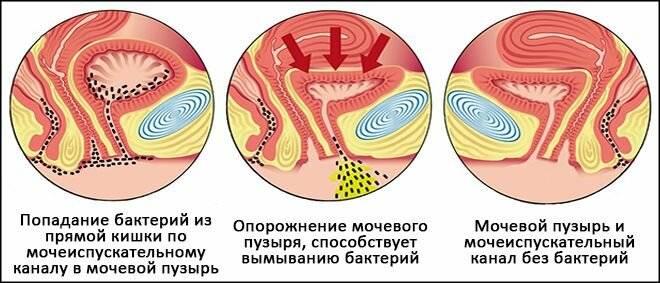 Сколько длится цистит: продолжительность лечения и профилактические меры
