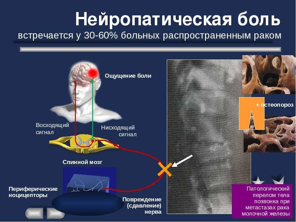 Нейропатическая боль — википедия. что такое нейропатическая боль