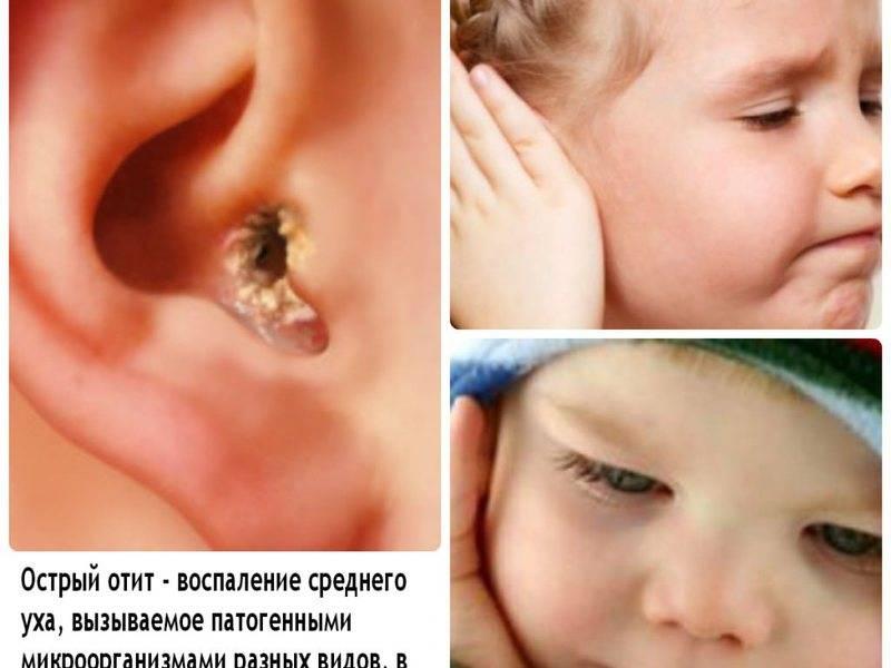 компресс на ухо при отите у ребенка