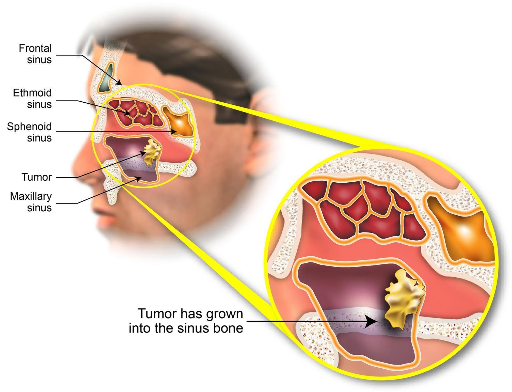 рак гайморовой пазухи прогноз