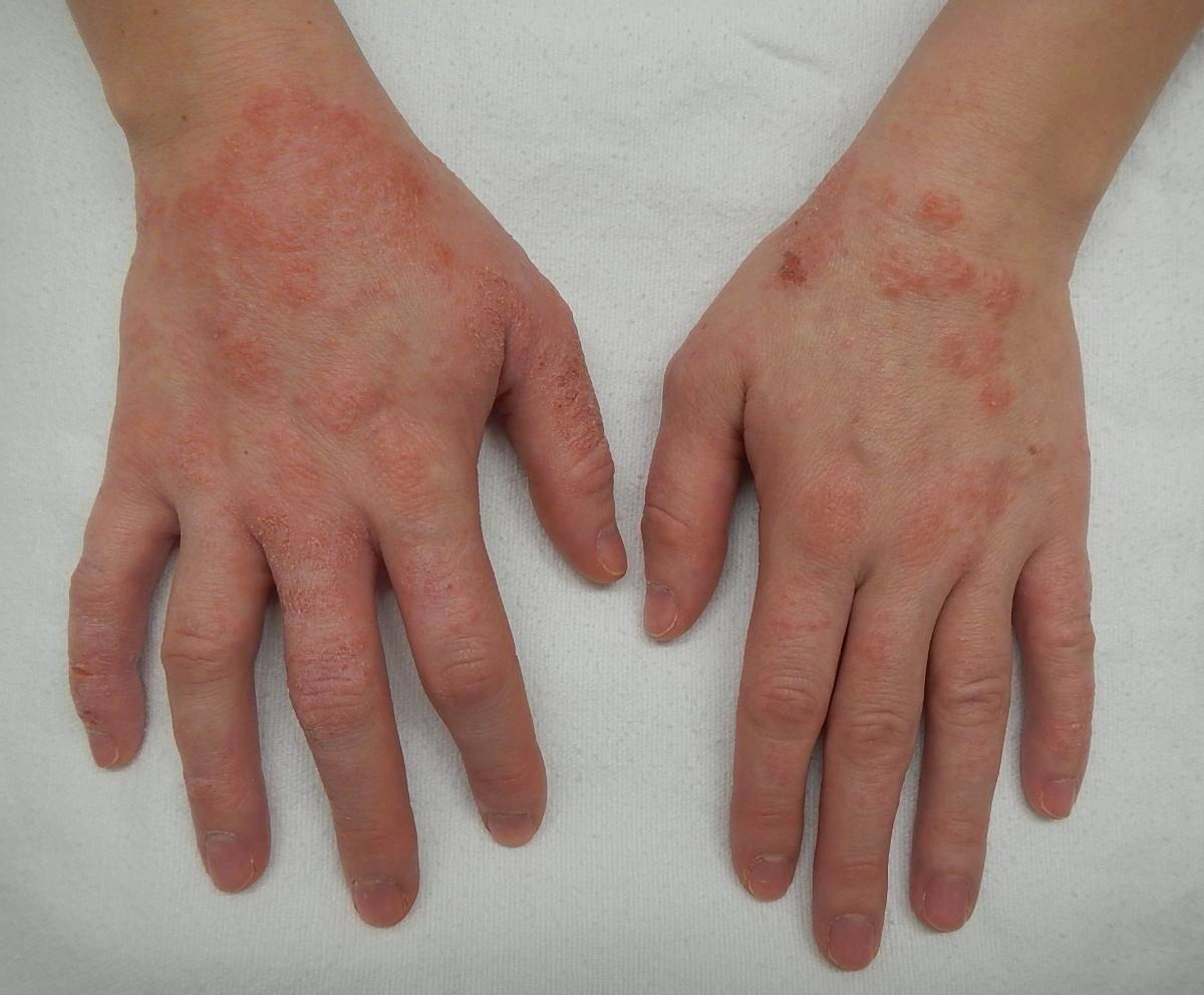 как отличить себорейный дерматит от псориаза