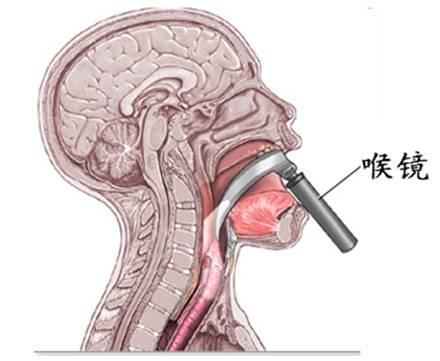 Эндоскопия горла как проводится