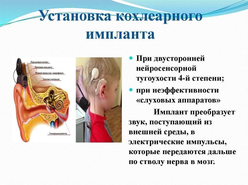 Острая нейросенсорная тугоухость. причины, виды и коррекция острой нейросенсорной тугоухости