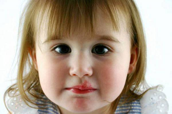 Как лечить герпес на теле у ребенка?