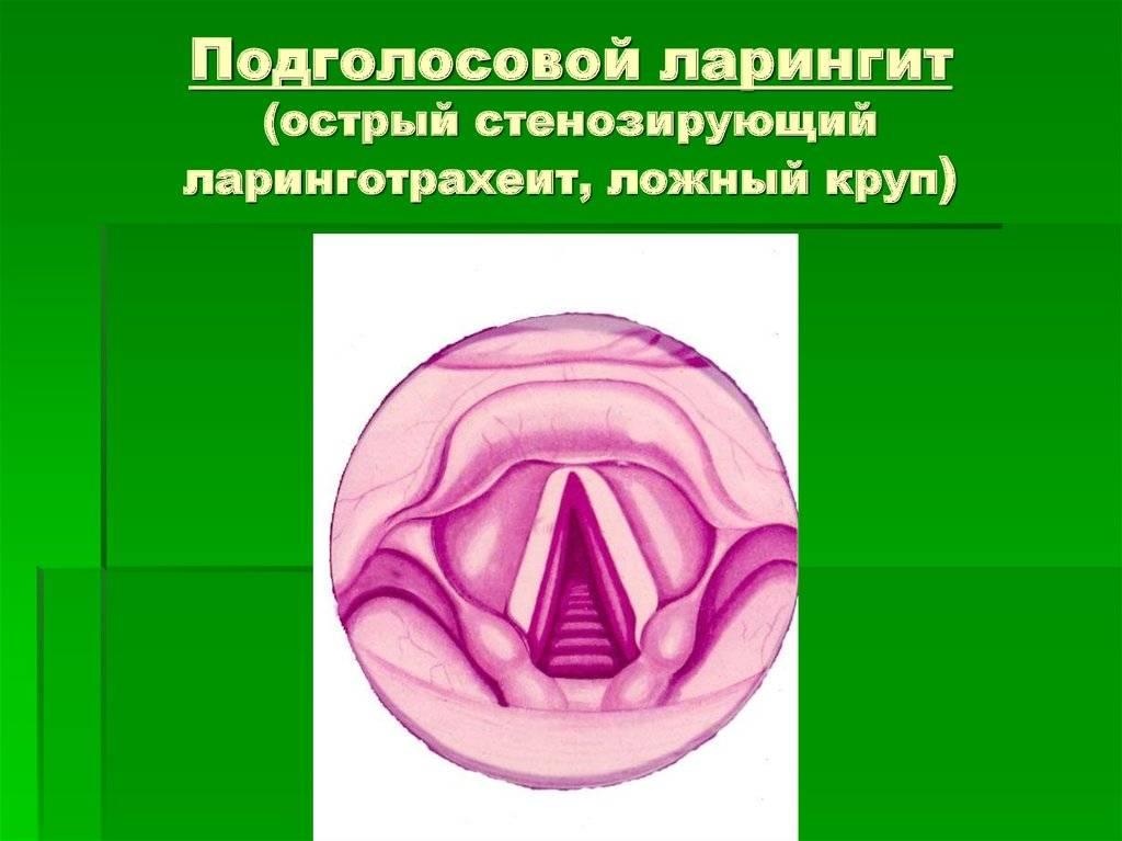 Ларинготрахеит: симптомы и лечение, профилактика трахеоларингита