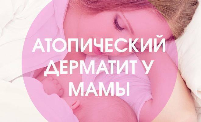 Себорейный дерматит у кормящей мамы, как лечить народными средствами? - запись пользователя яна (belokurayajozzi) в сообществе грудное вскармливание в категории совместимость лекарств - babyblog.ru