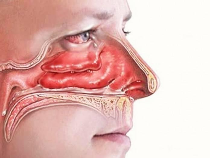 Приторный запах в носу