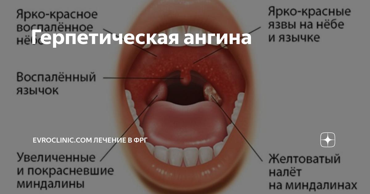 Герпесная ангина (на гландах, миндалинах, горле): лечение (препаратами и народными средствами), симптомы, причины, осложнения у взрослых (фото, видео)