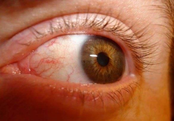 Заболели веки? эффективное лечение глаз народными средствами
