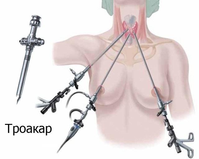 операция на щитовидку