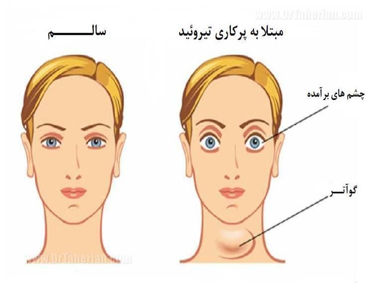 Как связаны больная щитовидка и выпадение волос