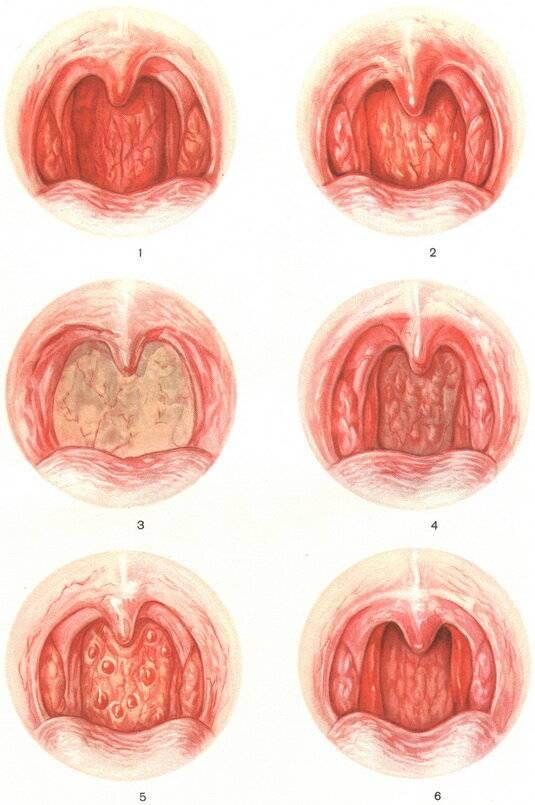 Гнойная ангина: лечение в домашних условиях, фото