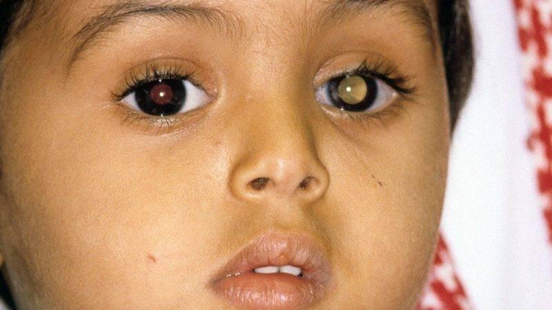Рак глаза и его основные симптомы