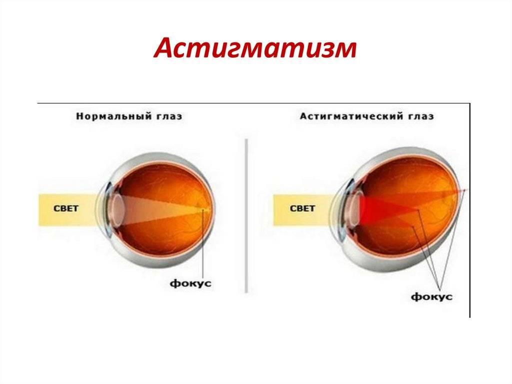 Что такое близорукий астигматизм? лечение простого и сложного близорукого астигматизма в fedorovmedcenter
