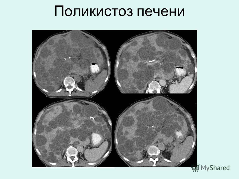 Главное о поликистозе печени: симптомы, диагностика, методы лечения