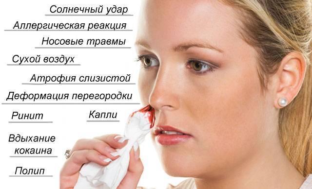 Голова болит кровь из носа