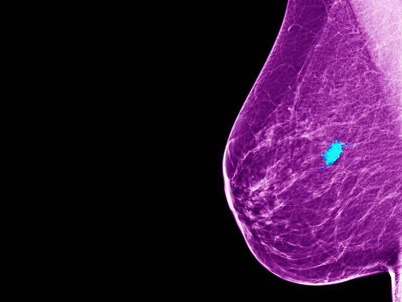 Гормонозависимый рак молочной железы прогноз