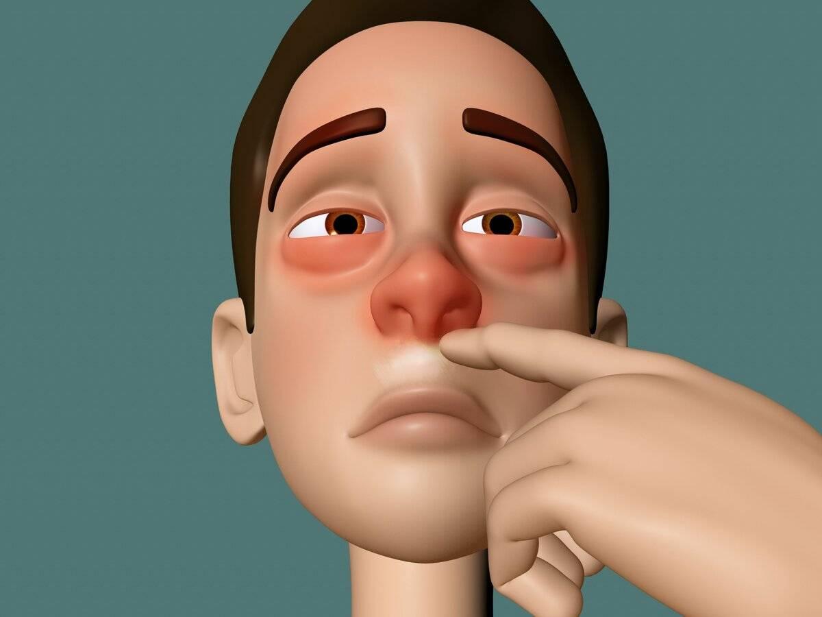 Зависимость от капель в нос: как избавиться?