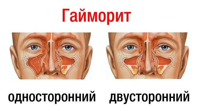 заложен нос болит голова температуры нет