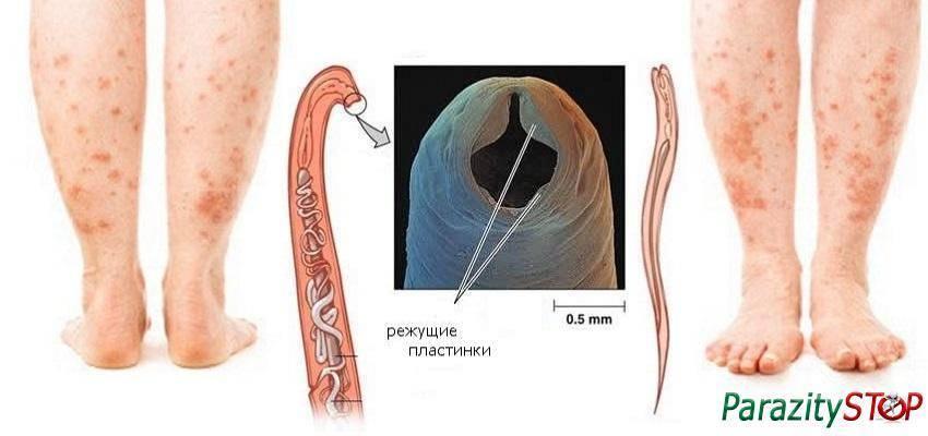 шистосомный дерматит