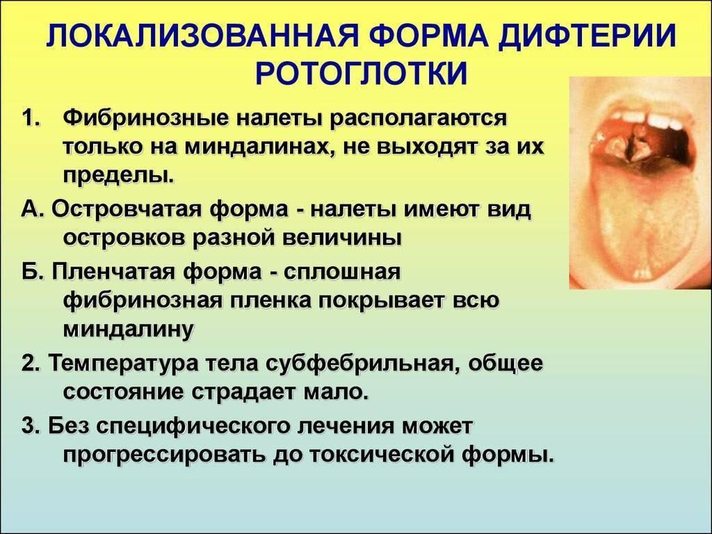 симптомы дифтерии у взрослых