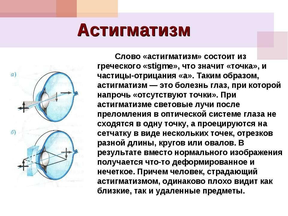 Что такое астигматизм — симптомы офтальмологического заболевания