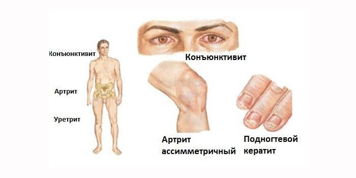 Хламидиоз: причины, симптомы, диагностика и лечение