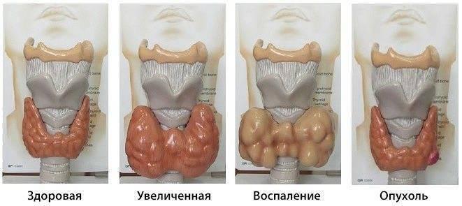 Коллоидные узлы в щитовидной железе