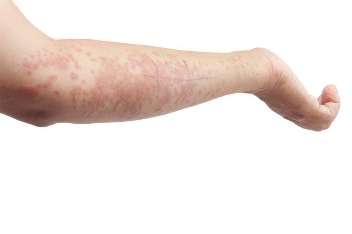 Чесотка: как выглядит заболевание и как его лечить?