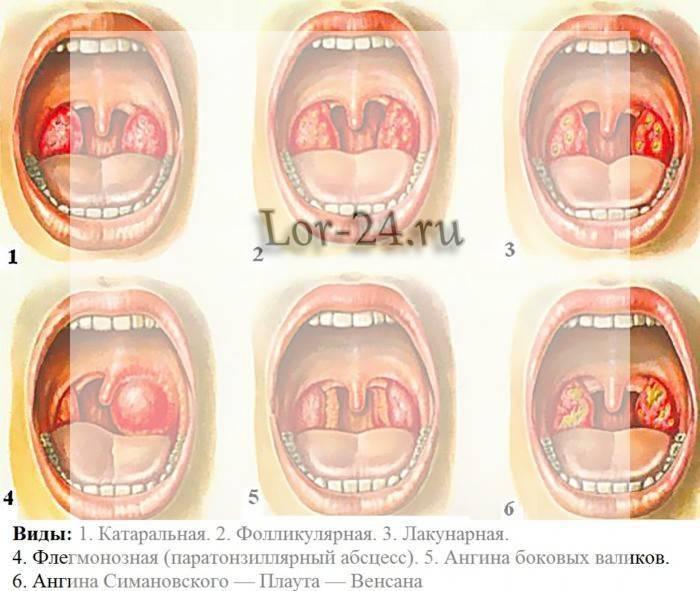 ангина симановского плаута венсана