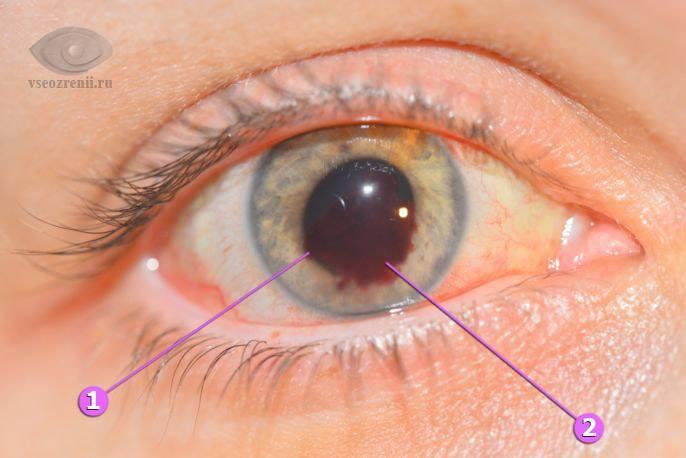 Ушиб глазного яблока лечение