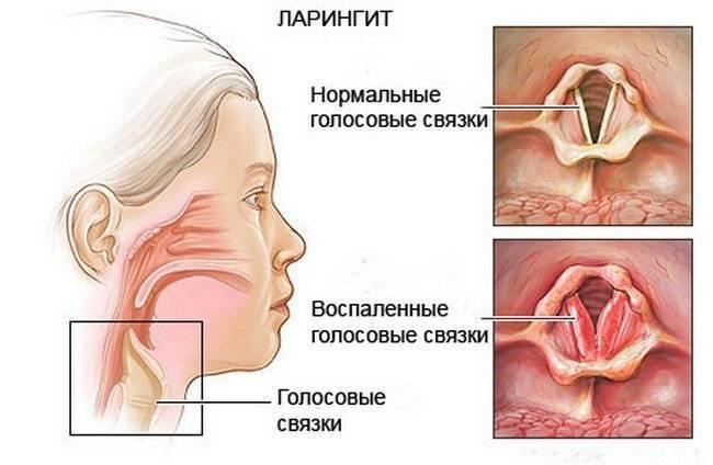 ларингит у грудничка симптомы и лечение