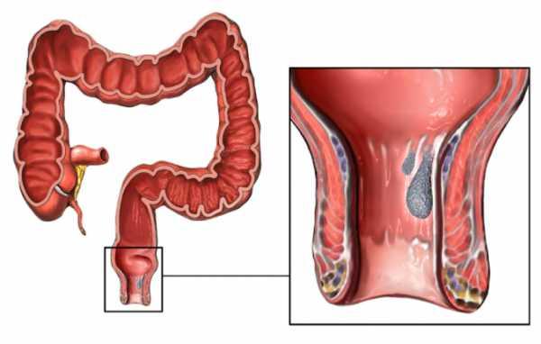 Лечение геморроя с кровью