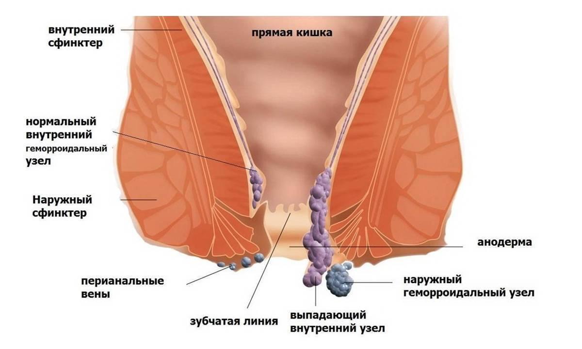 Тромбоз геморроидального узла: лечение и профилактика