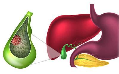 Рак желчного пузыря - описание болезни