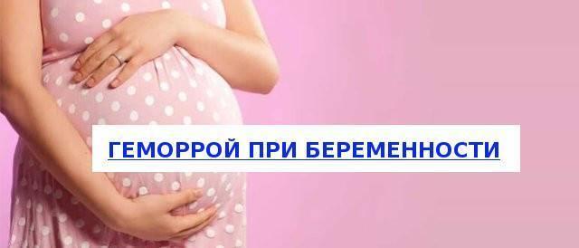 Геморрой при беременности: лечение