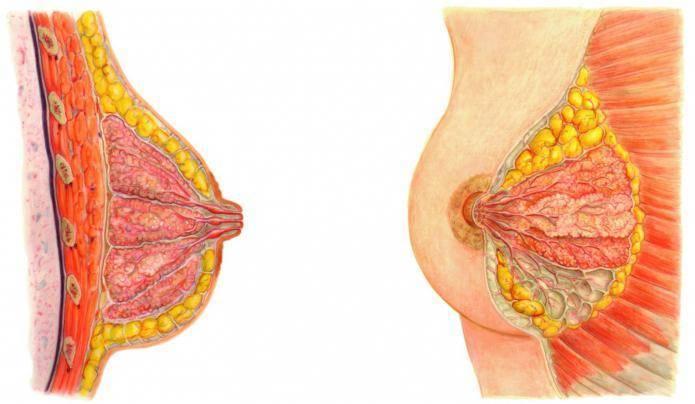 Симптомы образования внутрипротоковой папилломы в молочной железе и методы ее лечения