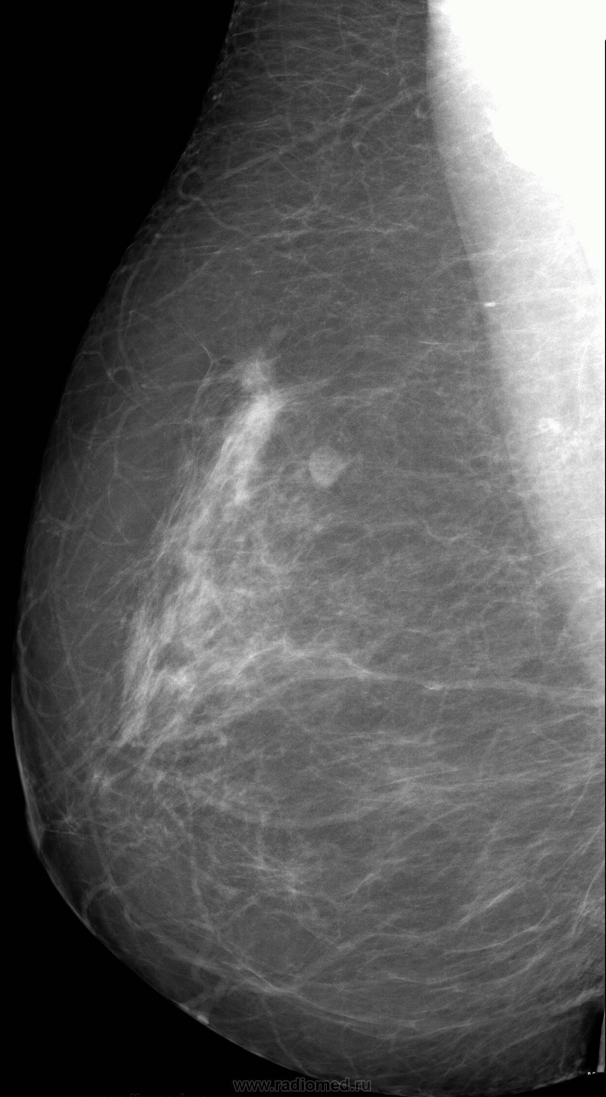 Особенности развития инфильтративного рака молочной железы