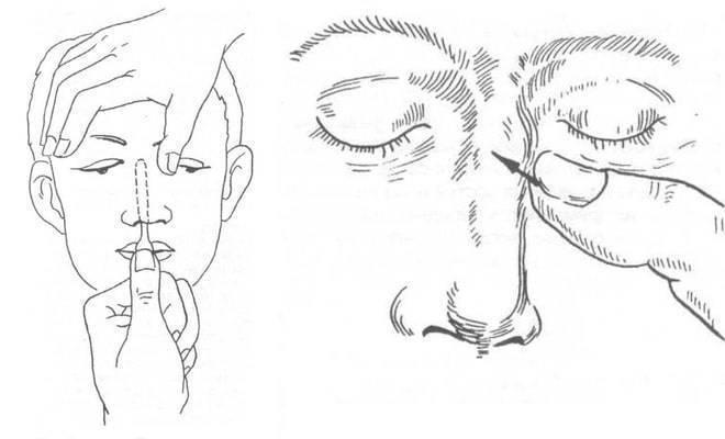 Репозиция костей носа при переломах