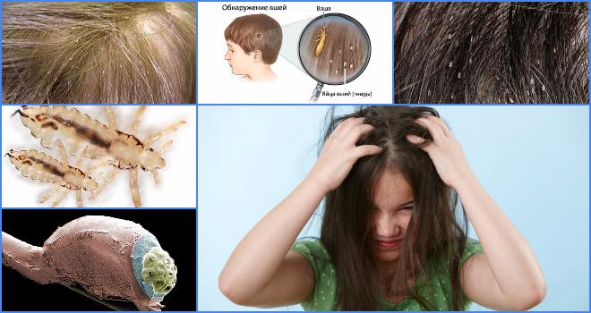Погибают ли вши при окрашивании волос