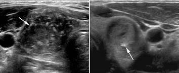 Кальцинированные узлы в щитовидной железе лечение