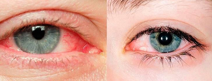 Синдром сухого глаза лечение народными средствами